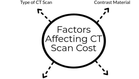 Factors Affecting CT Scan Cost in Delhi