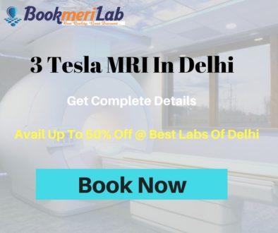 3 Tesla MRI In Delhi